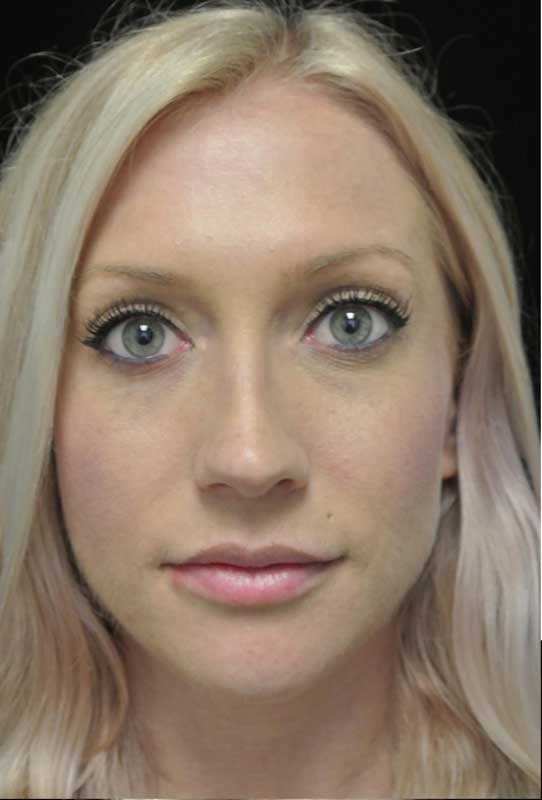 after photo of a female patient who underwent a lip enhancement