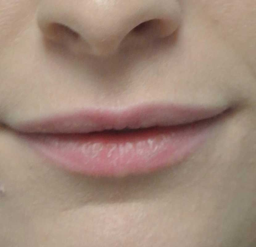 before close up photo of a female patient's lips who underwent a lip enhancement
