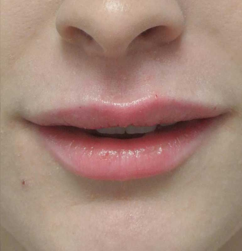 after close up photo of a female patient's lips who underwent a lip enhancement