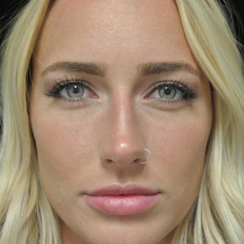 before close up frontal view photo of a female patient who underwent a lip enhancement