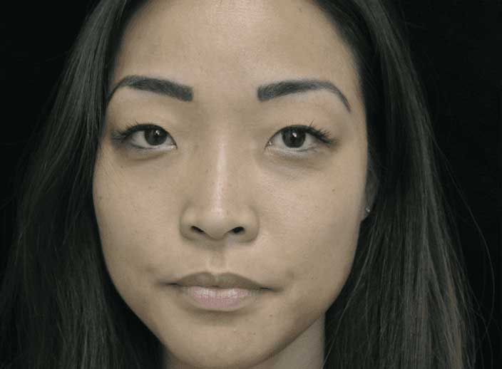 before frontal view photo of a female's face who underwent non surgical lip filler