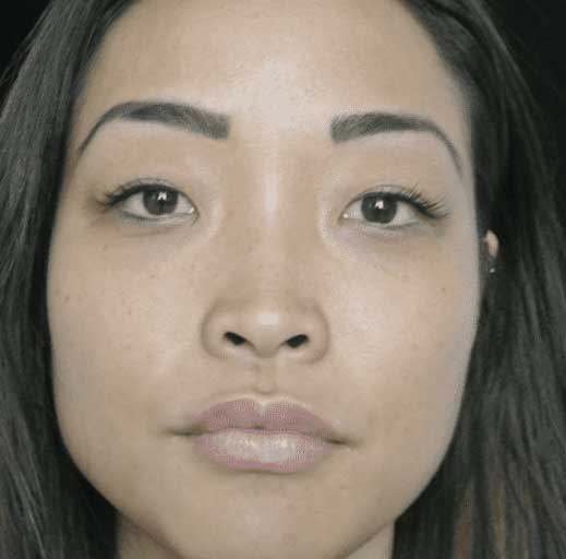 after frontal view photo of a female's face who underwent non surgical lip filler