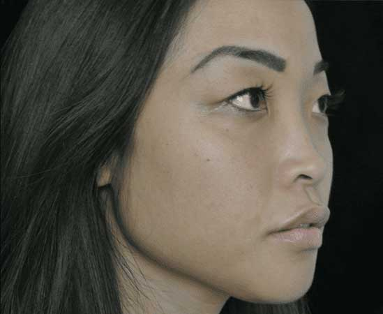 after left profile view photo of a female's face who underwent non surgical lip filler