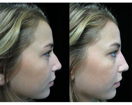 before and after close up photo of a woman facing left who underwent a liquid nose job