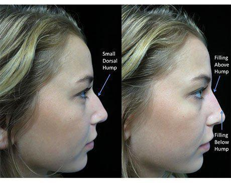 before and after close up photo of a woman facing left who underwent a liquid nose job with illustration