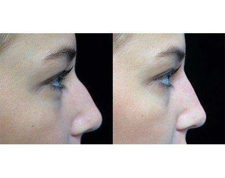 before and after close up photo facing left of a non surgical liquid nose job patient