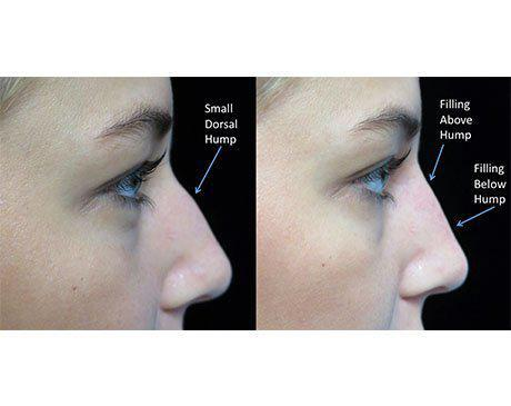 before and after close up photo facing left of a non surgical liquid nose job patient with illustration
