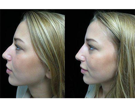 before and after side view photo facing right of a liquid non surgical rhinoplasty patient
