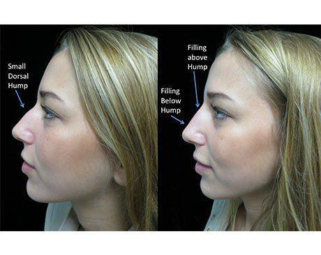 before and after side view photo facing right of a liquid non surgical rhinoplasty patient with illustration