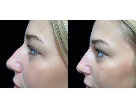 a liquid non surgical rhinoplasty patient facing right on a before and after closeup photo