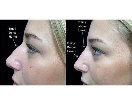 a liquid non surgical rhinoplasty patient facing right on a before and after closeup photo with illustration