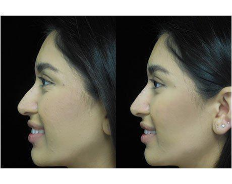 a non surgical nose job patient facing right on a before and after close up photo