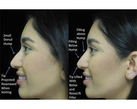 a non surgical nose job patient facing right on a before and after close up photo with illustration
