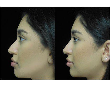 before and after close up photo of a woman facing right who underwent a non surgical nose job