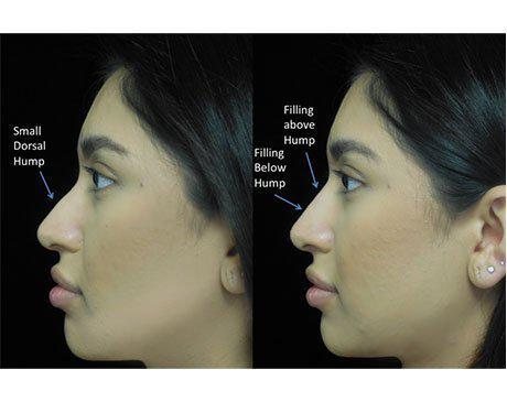 before and after close up photo of a woman facing right who underwent a non surgical nose job with illustration
