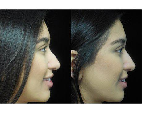 before and after sideview photo of a patient who underwent a liquid non surgical rhinoplasty