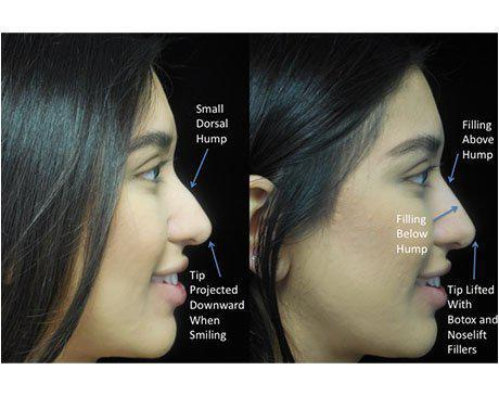 before and after sideview photo with illustration of a patient who underwent a liquid non surgical rhinoplasty
