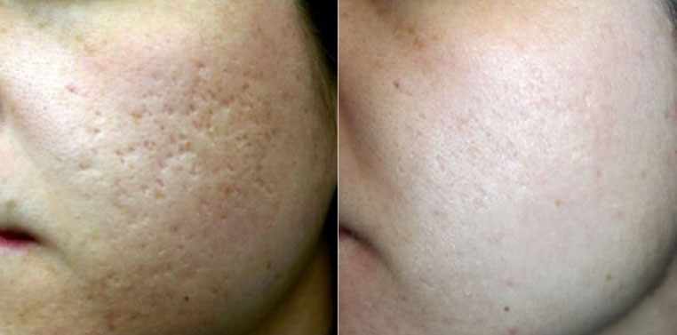 micro needling facial patient with a before and after close up photo