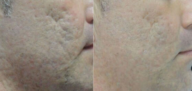 close up before and after photo of a man who underwent micro needling facial