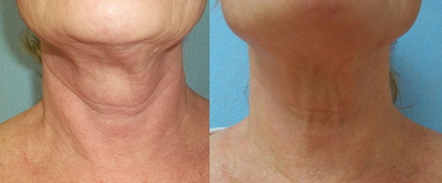 before and after photo of on old woman's neck and jowl after 2 sessions of fractora laser