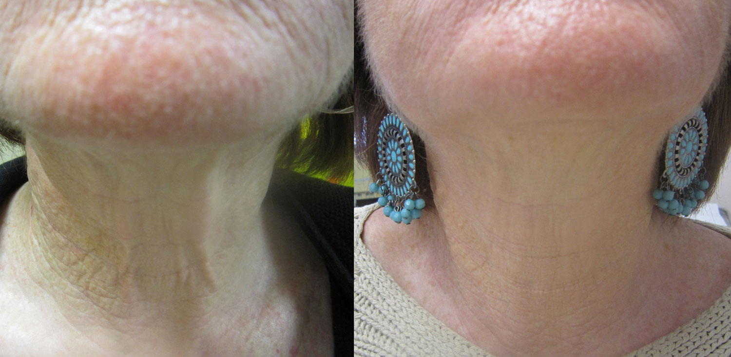 before and after photo of on old lady's neck after 2 sessions of neck reuvenation