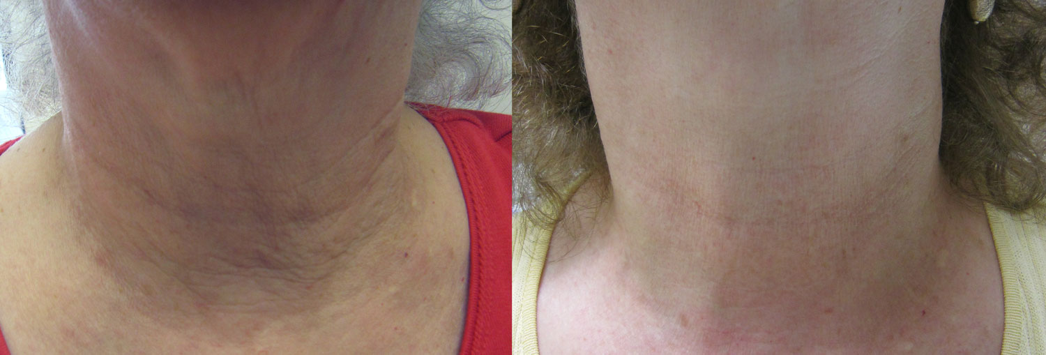 before and after photo of on old lady's neck after 1 session of fractora laser