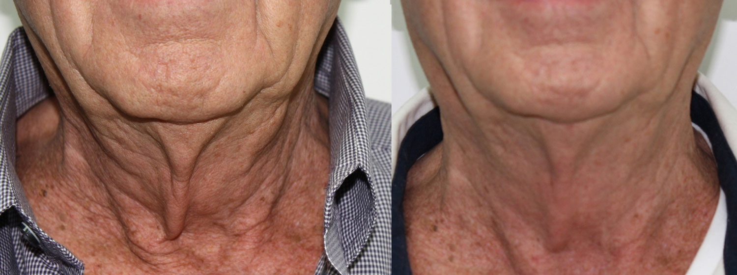 before and after photo of on old man's neck after 3 sessions of fractora laser