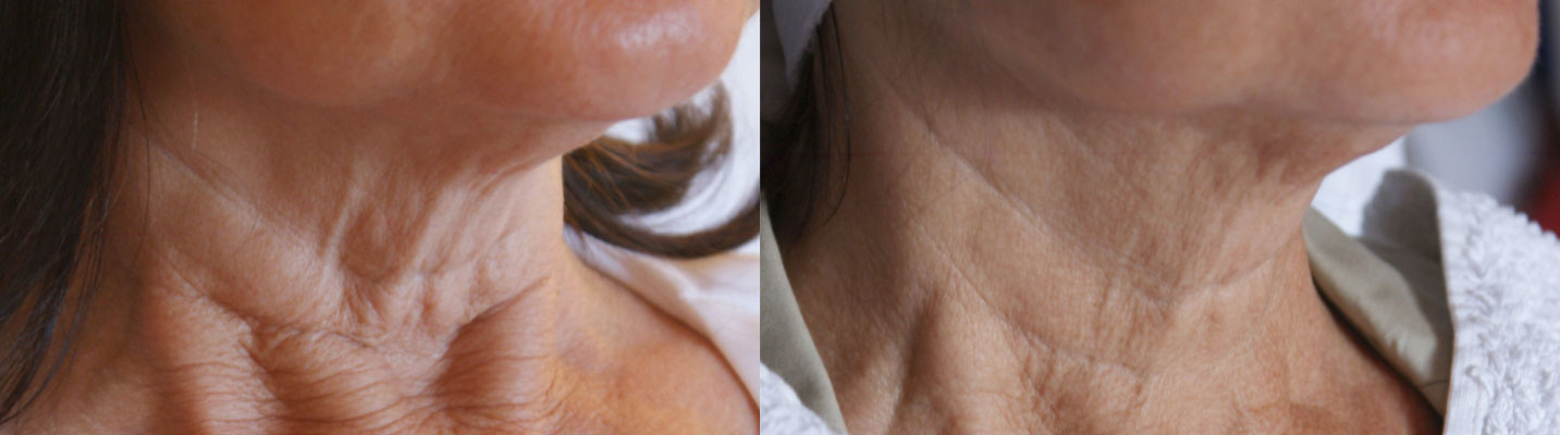 before and after photo of on old lady's neck after 2 sessions of fractora laser