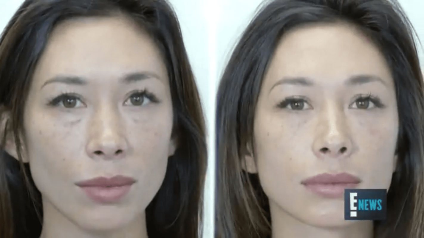 before and after photo of a patient who underwent best under eye treatments