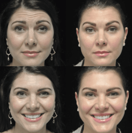 before and after photo of a female patient who underwent botox anti aging
