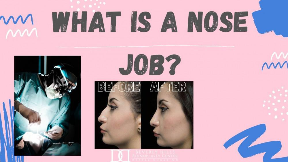 "Dr Dugar doing scarless rhinoplasty, a before and after photo of a woman who underwent scarless rhinoplasty, and the text above ""What is a nose job?"""