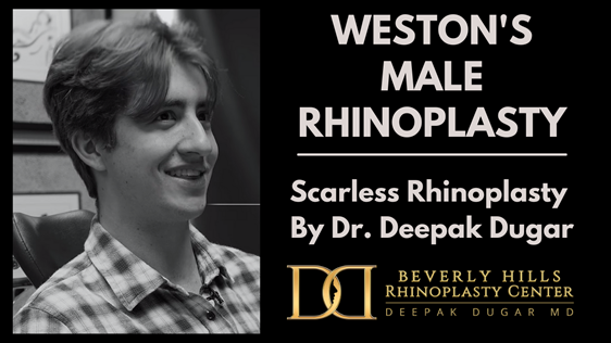 Youtube thumbnail of Dr Dugar's video about Rhinoplasty experience of a male patient