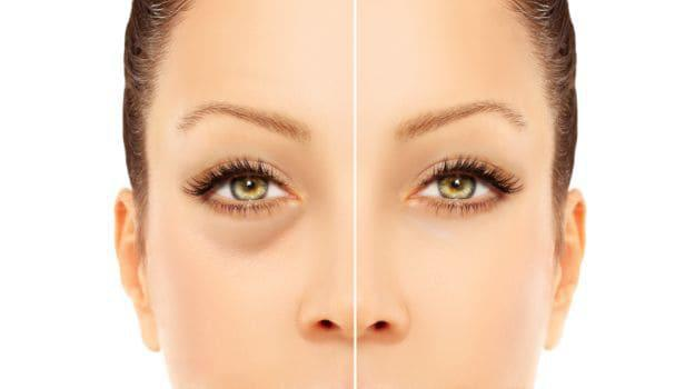before and after photo of a woman with a reduced puffy eyes after an under eye treatment