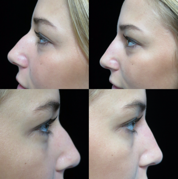 before and after photos of a female patient after liquid nose job