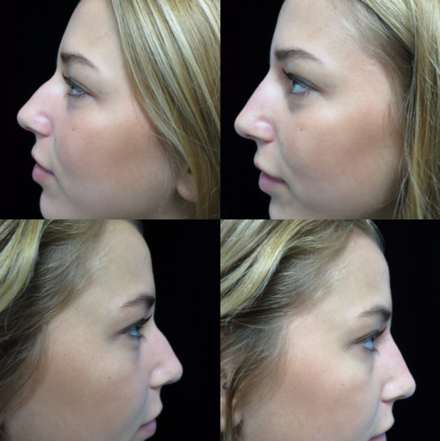 before and after photos of a female patient after non surgical nose job