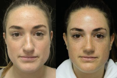 before and after photo on a front profile view of a female patient with bulbous nose who underwent a bulbous nose tip rhinoplasty