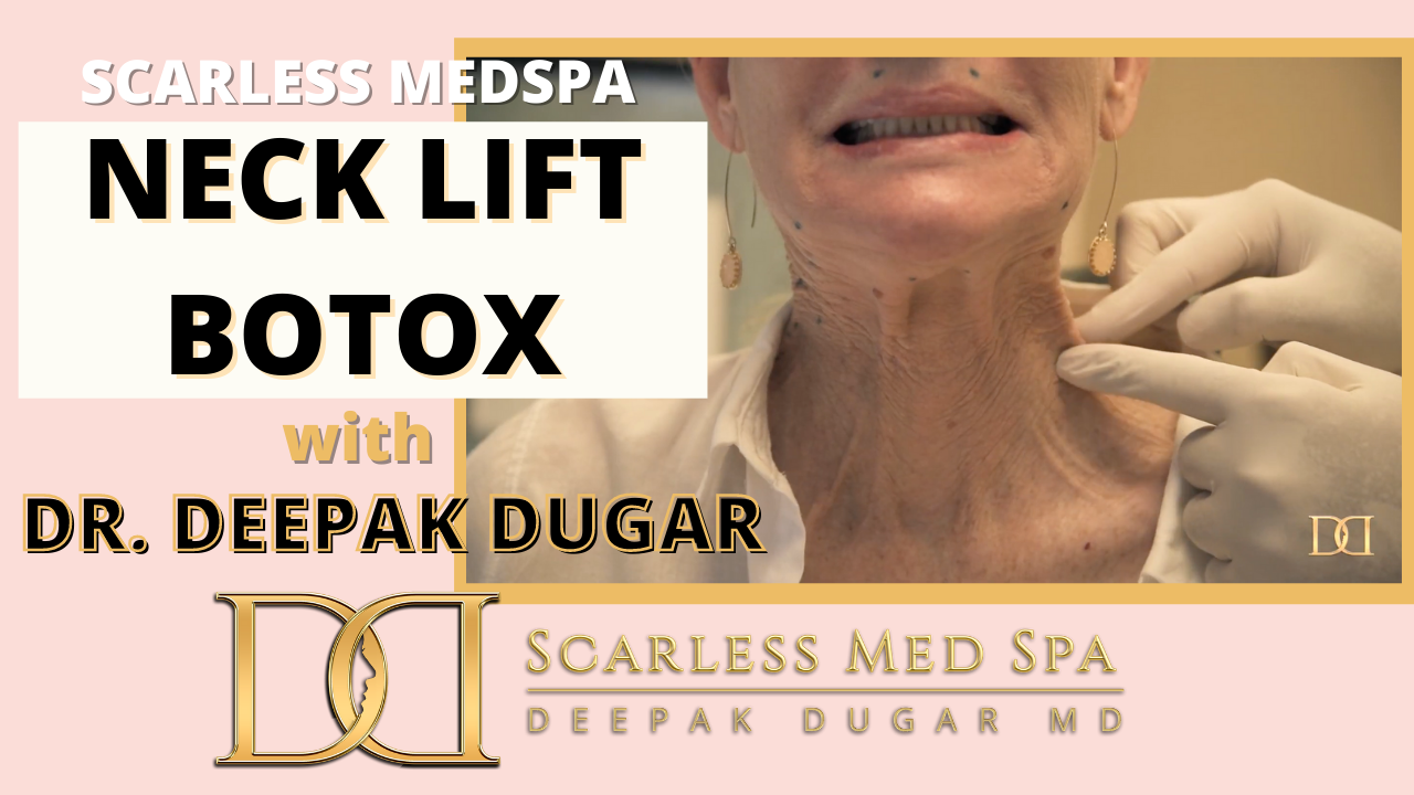 Youtube thumbnail of Dr Dugar's video about Neck Lift Botox