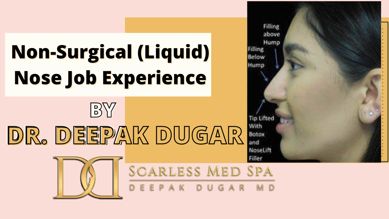 Youtube thumbnail of Dr Dugar's video Non-Surgical (Liquid) Nose Job Experience