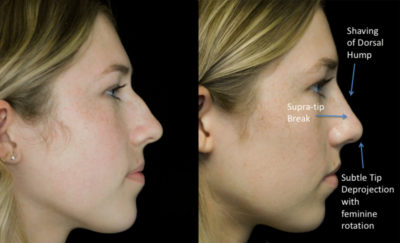 before and after photo on a right profile view of a female patient with bulbous nose who underwent a bulbous nose job