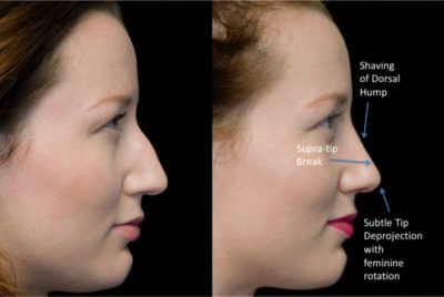 before and after photo on a right profile view of a female patient with bulbous nose who underwent a nose tip surgeryscarless rhinoplasty