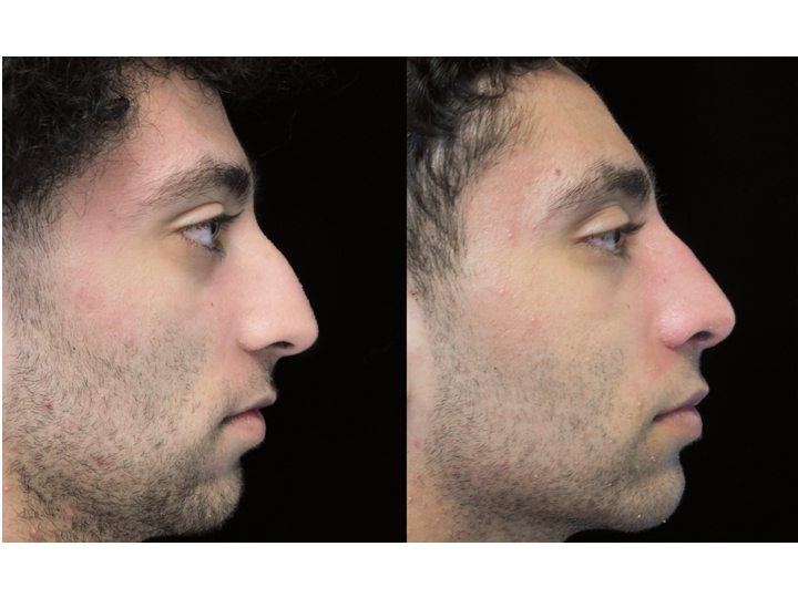 a man with a before and after nose job bulbous tip photo