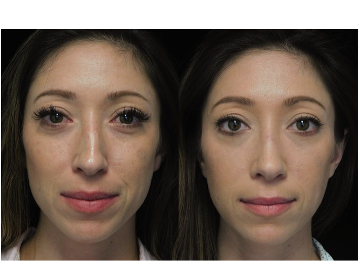before and after photo of a woman who underwent a nose job tip reduction