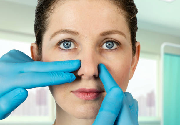 A plastic surgeon examining a nose of a female patient after closed rhinoplasty